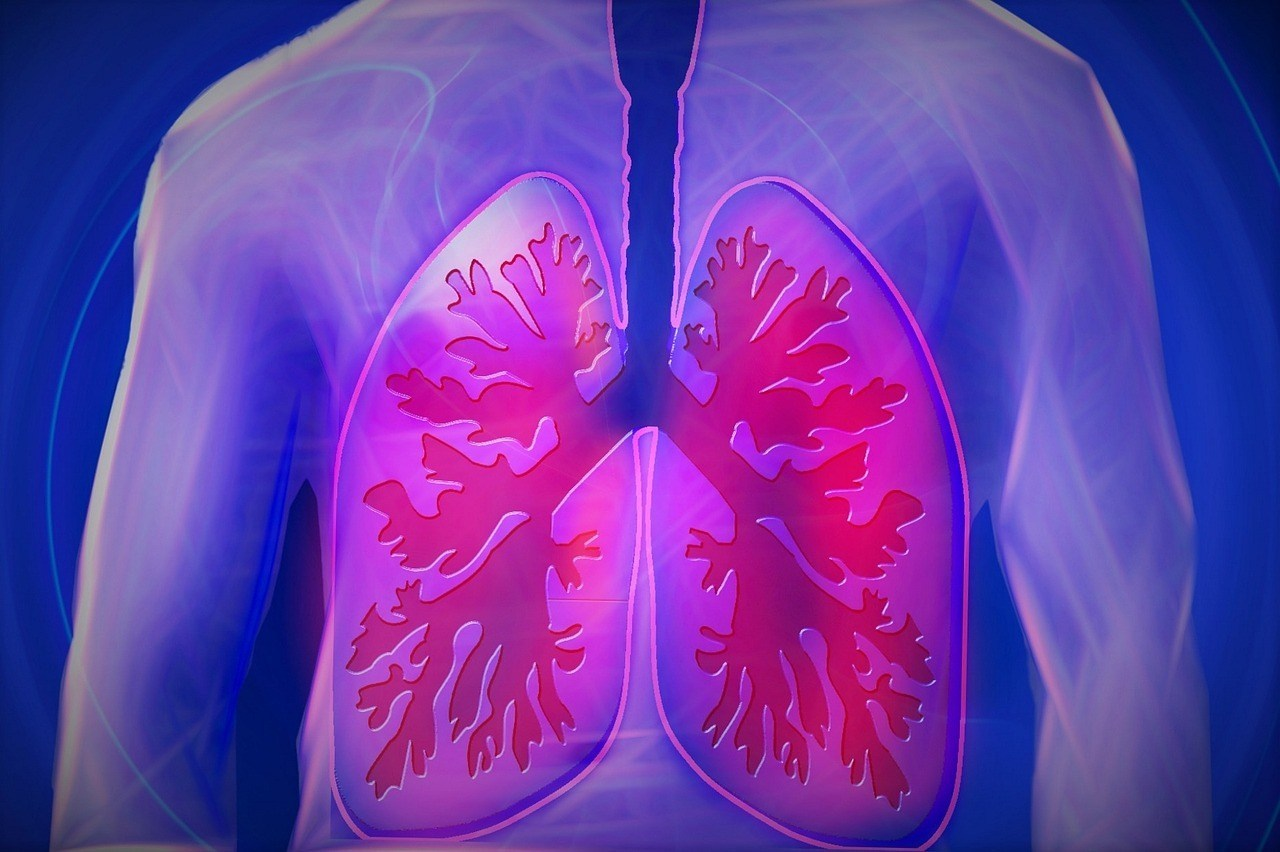 Antifungal Medicine Likely To Treat Cystic Fibrosis